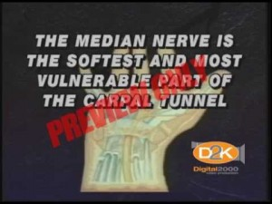 Carpal Tunnel Syndrome Safety Video