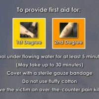 First Aid for Common Injuries Safety Video